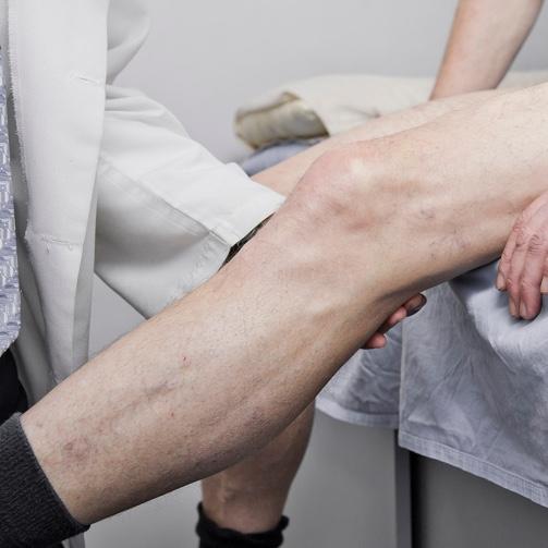 Knee Surgery Sydney